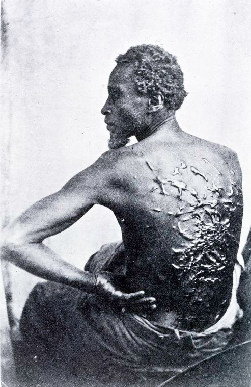 """Schomberg Collection: """"Wounds of Torture"""" 1863"""