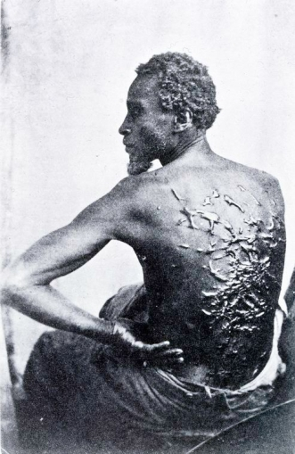 "Schomberg Collection: ""Wounds of Torture"" 1863"